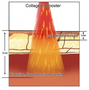Colagen-Booster-light-NL