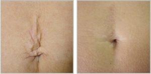 PlexR Max Skincare