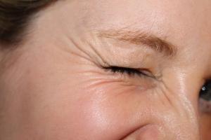 Kraaienpootjes botox