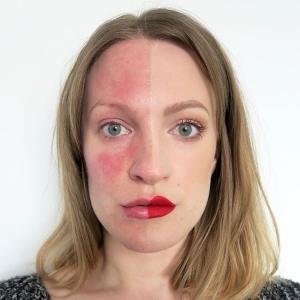 Rosacea gezicht
