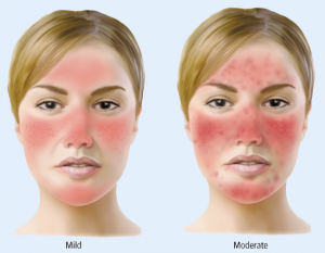 is rosacea besmettelijk